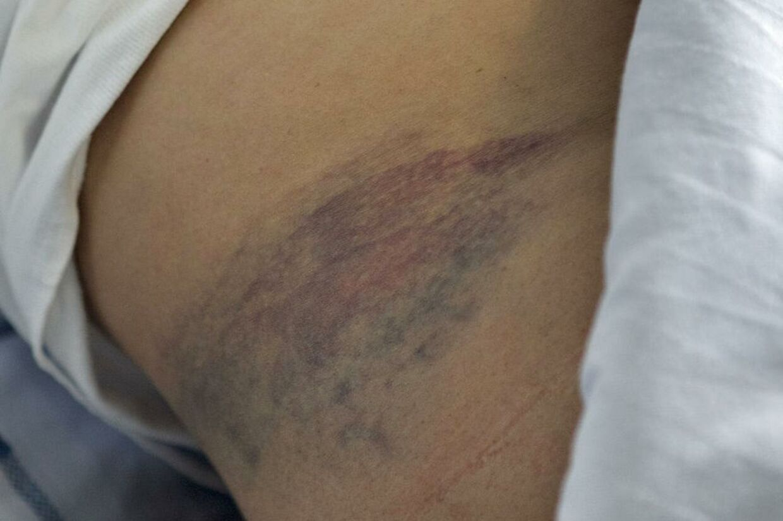 I højre side under den gravide mave, modtog Joana Dervishi flere spark. Hun har uforklarlige blødninger og er bange for, at barnet er blevet skadet af overfaldet.