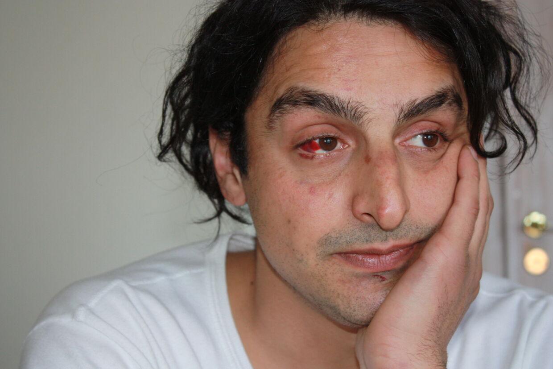 """Blodsamlingen i Nadirs øje vidner om hans sammenstød med værtshusgæster på """"Den Gamle Høker""""fredag aften."""