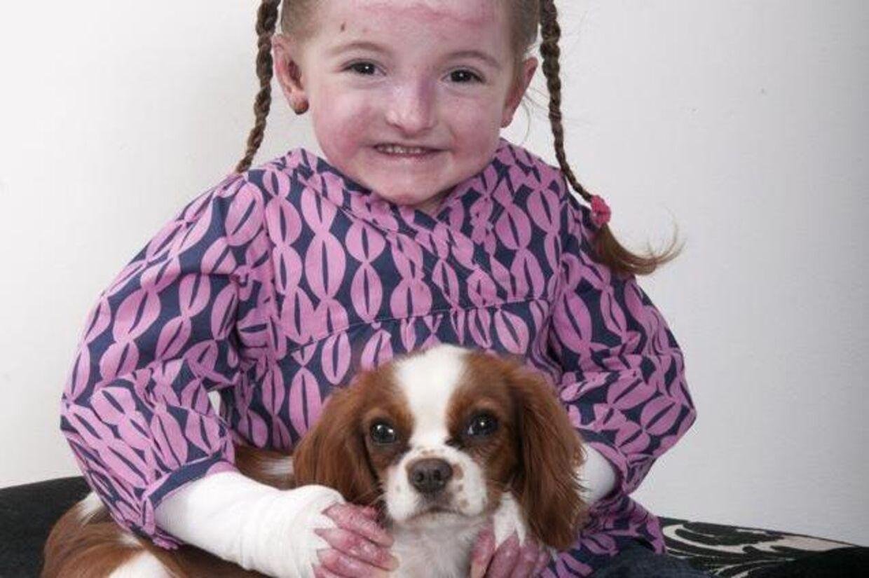 Syv-årige Maisy lider af en ekstrem tilstand, der gør hendes hud meget skrøbelig.