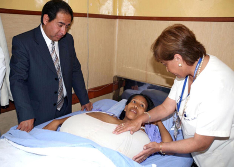 Julia Manihuari i sengen på 'Ærkebiskop Loayza Hospital' i Lima inden hendes enorme størrelse N-bryster blev opereret mindre.