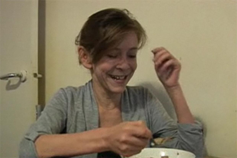 Zara Hartshorn lider af sjælden sygdom. Den får hende til at ligne en 50-årig. Men hun er kun 13.