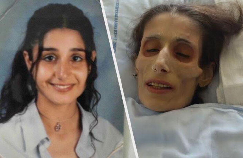 Et billede, der viser Elham som teenager - før hendes anoreksi tog fat for alvor - og det sidste billede, der er taget af den unge kvinde i sommer. Her vejede hun blot 18 kilo. Foto: Privatfoto.