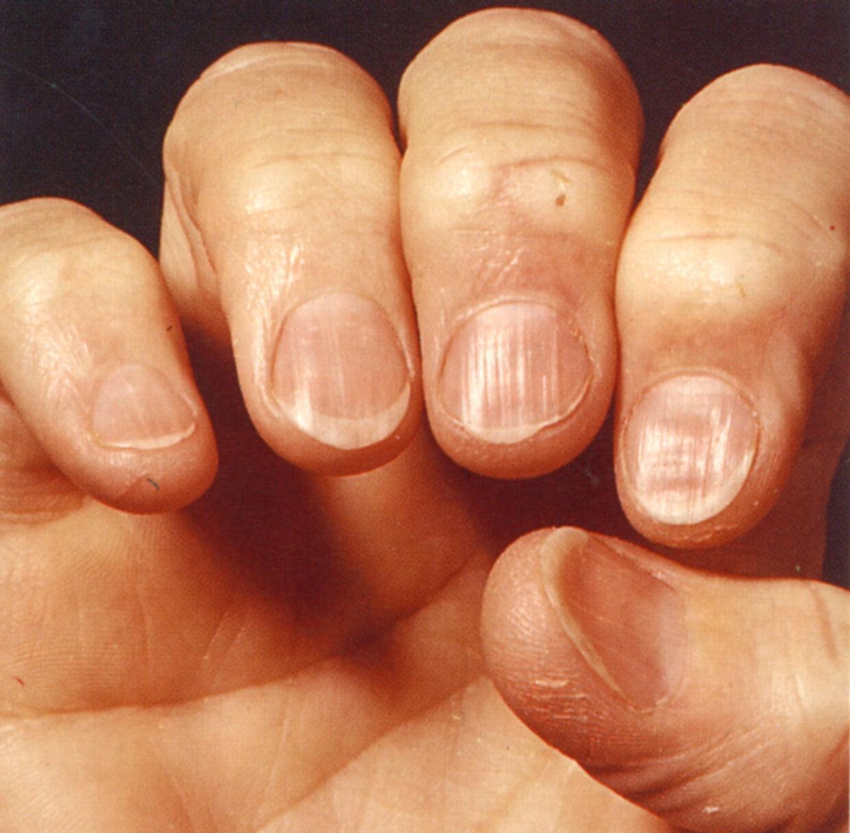 tånegle sygdomme