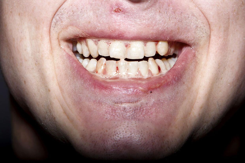 En kvinde fra Vejle har modtaget en regning på 40.000 kroner af den tidligere tandlæge Claus Ommen, som hun aldrig har mødt.