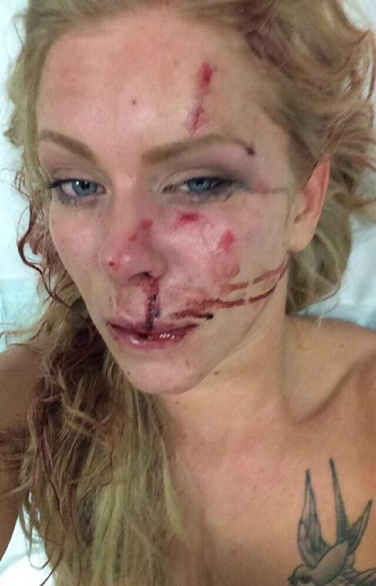 Nanna Skovmand lagde dette billede på Facebook nogle dage efter overfaldet. Siden blev hendes historie delt vidt og bredt på de sociale medier.