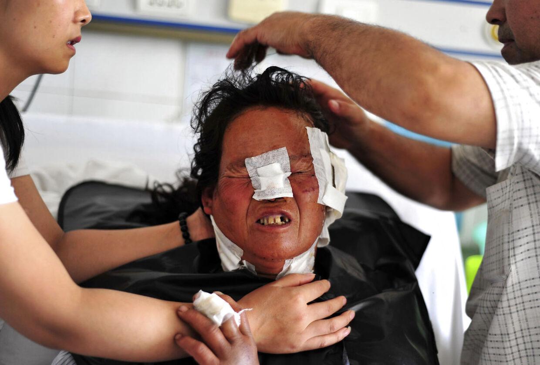 Kvinde såret af ulveangrebet i Kina. Fem familier blev angrebet af fire til fem ulve mandag morgen. Lokale medier skriver, at seks personer blev såret under angrebet. Billede taget 12. august 2014. (Foto: REUTERS/Stringer)