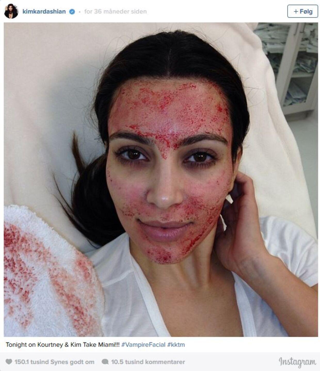 Metoden blev første gang kendt, da Kim Kardashian for 3 år siden fik fikset ansigtet med vampyr-behandling.
