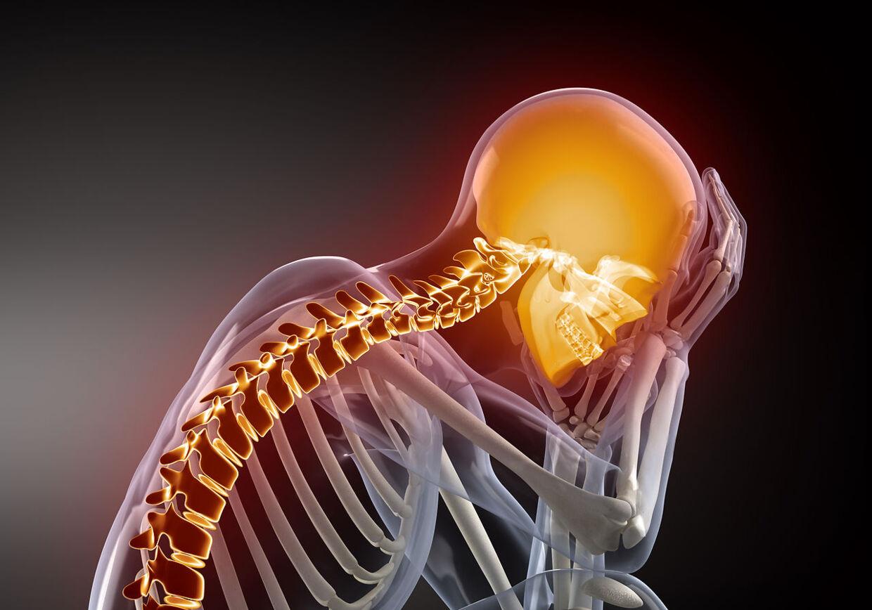 Hjernerystelser kan udvikle sig til et livslangt problem.