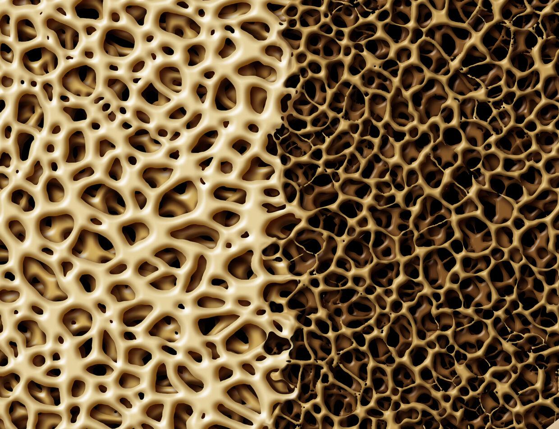 Til venstre ses en sund knoglestruktur, til højre en knogle med knogleskørhed, også kaldet osteoporose.