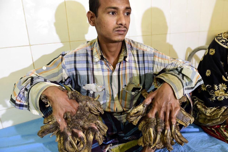 Den 26-årige taxachauffør Abul Bajandar fra Bangladesh lider af den sjældne hudsygdom epidermodysplasia verruciformis. Det betyder, at hans krop udvikler vorter, der har en slående lighed med træ.