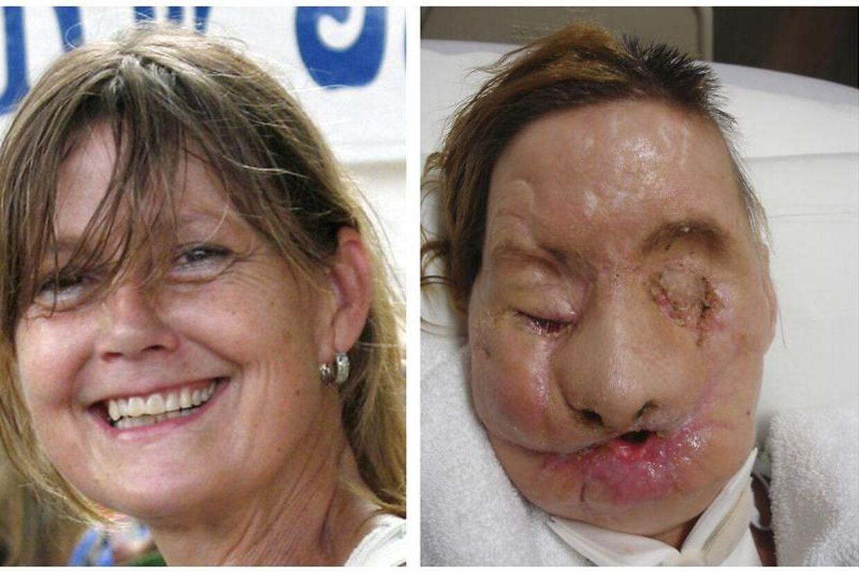 Charla Nash blev alvorligt skadet, da hun blev angrebet af en chimpanse. Den ødelage hele hendes ansigt. Charla fik dog derefter opereret et nyt ansigt.