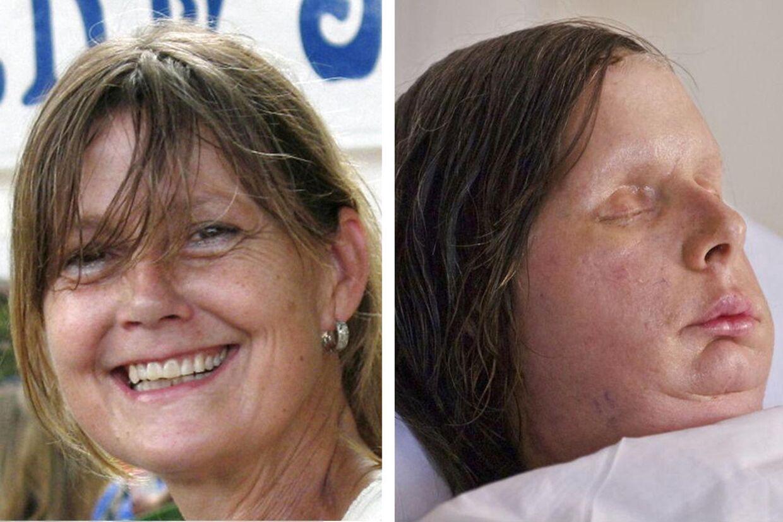 Til venstre ses Charla før ulykken - til højre ses hun med sit nye ansigt.