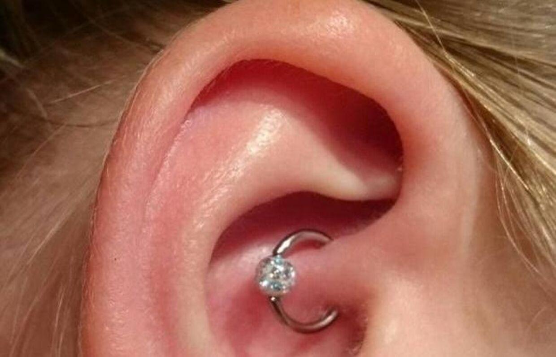 piercing for migræne