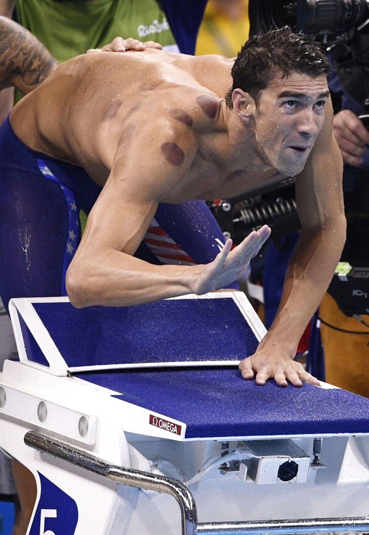 Den amerikanske svømmelegende Michael Phelps har allerede taget sin første guldmedalje ved OL i Rio, men de røde mærker på hans ryg og skulder har fået en del af opmærksomheden.