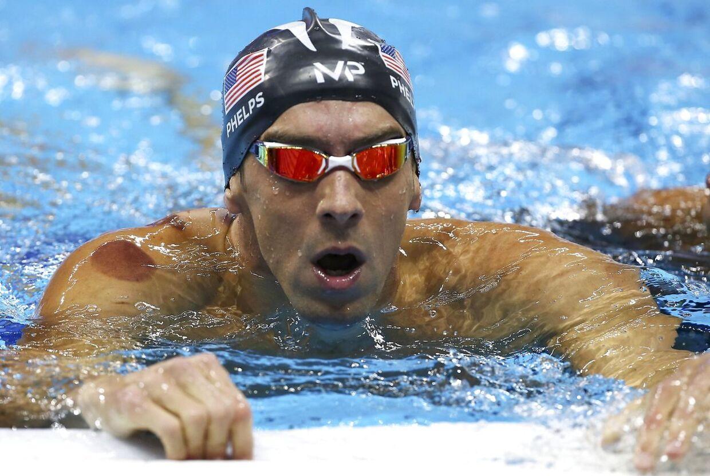 Michael Phelps i vandet med synlige mærker på kroppen under finalen i mændenes 4 x 100 meter fri-konkurrence, som amerikanerne vandt.