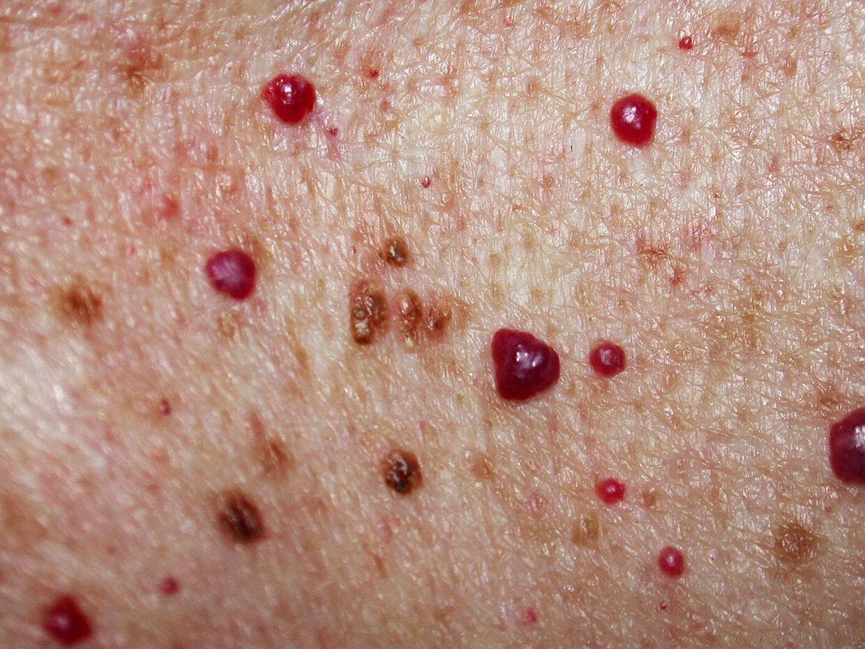 herpesblåsor på kroppen