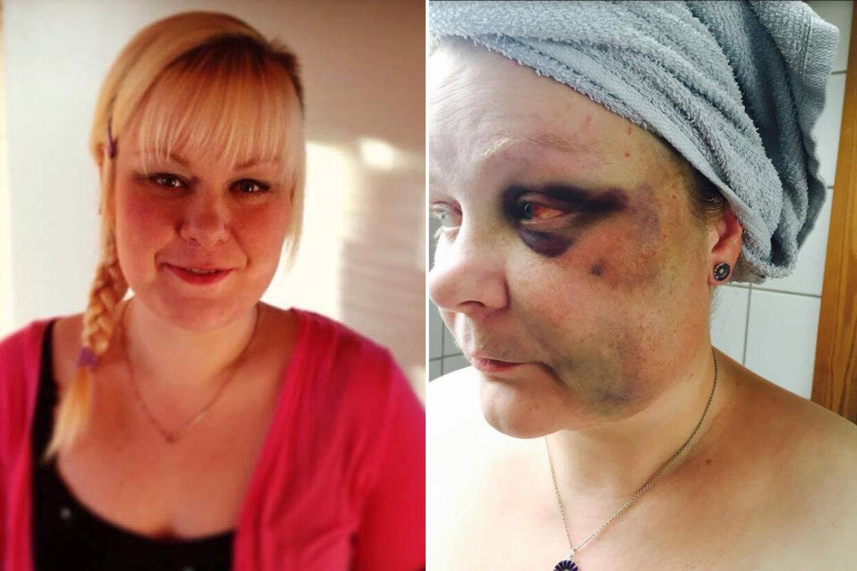 Før- og efterbilleder af 35-årige Annette Bech Pedersen, der blev groft overfaldet og truet på livet af en mand natten til onsdag. Det er en mand, som hun angiveligt har forsøgt at få et polititilhold imod gennem flere uger.