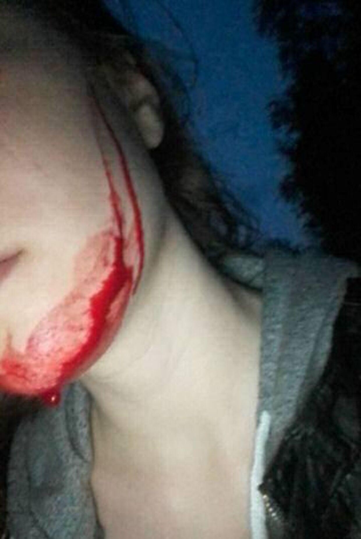 Det var en meget chokeret Emilia Jensen, der kom hjem til sine forældre lørdag aften. Hun var blevet overfaldet af fire drenge.