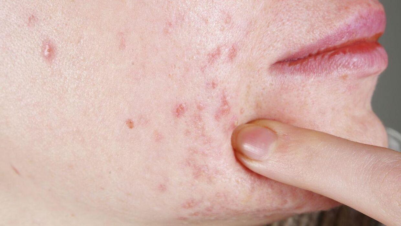 hudlæge acne