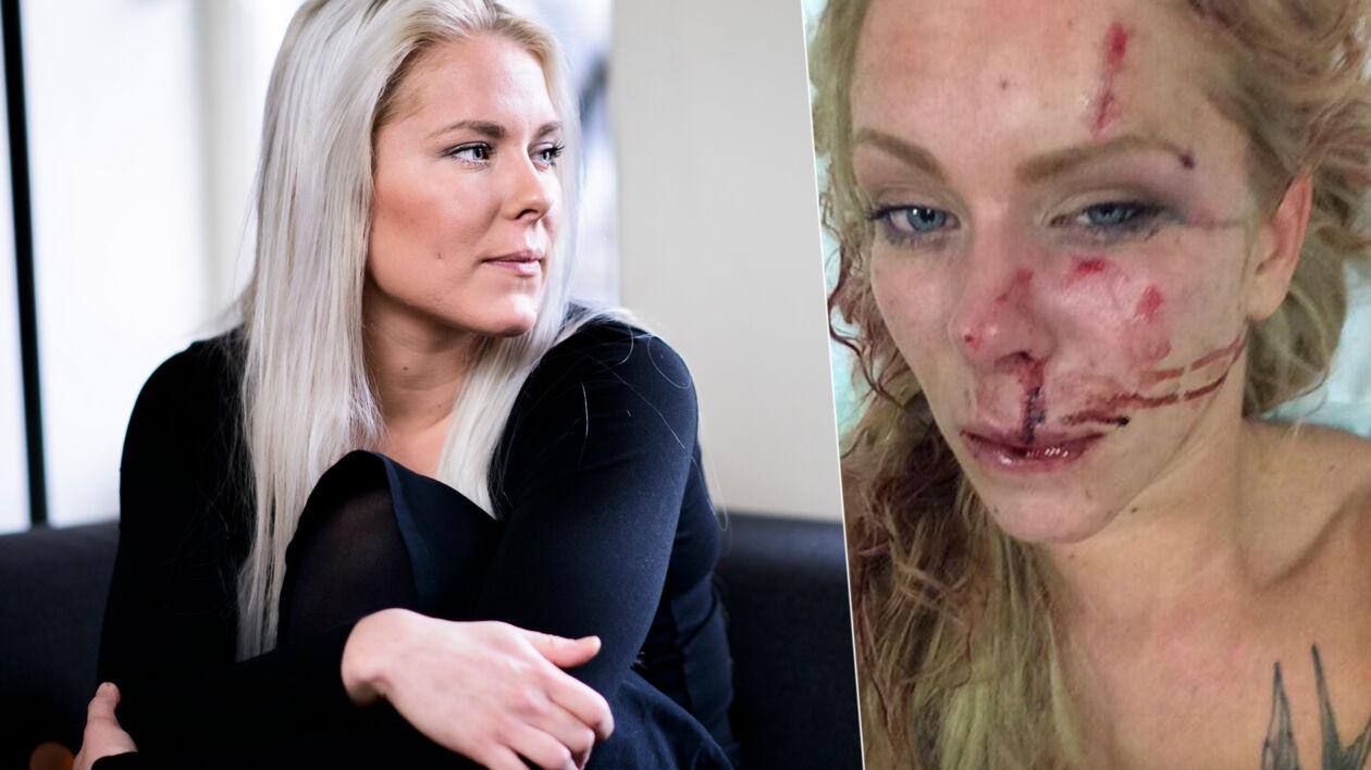Nanna Skovmand og hendes kæreste blev overfaldet og tæsket med cykelkælder sidste år julenat. Et år senere kæmper Nanna Skovmand for at genfinde sig selv midt i kampen mod PTSD, angst og depression.