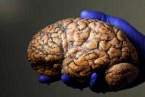 Vi kan træne hjernen og dermed bryde de dårlige vaner.