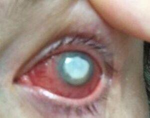 Blev blind af kontaktlinser - nu advarer hun andre mod farlig ... 4b2e47e953aab