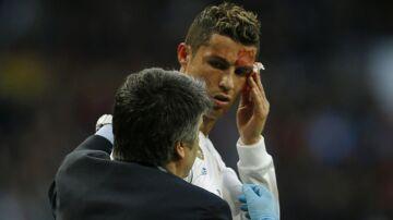 Cristiano Ronaldo blev slået til blods efter den ene af sine to scoringer i Real Madrids sejr over Deportivo la Coruña på 7-1.