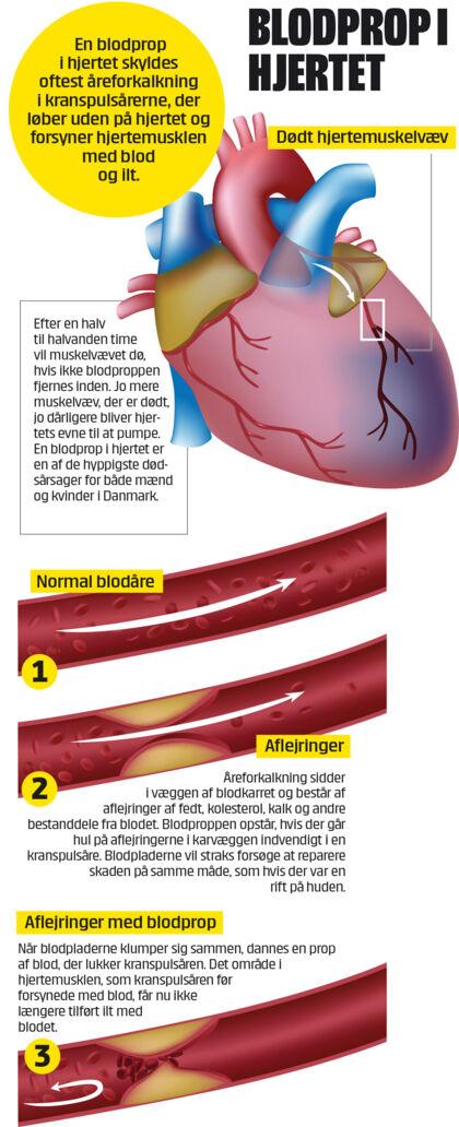blod efter udløsning slagelse