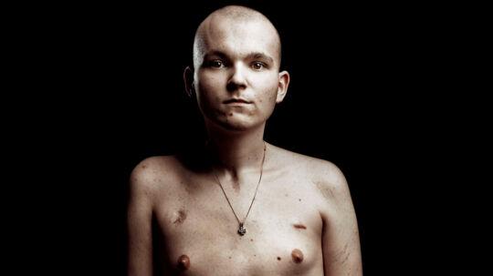Patrick Lehnert, 19 år, har kræft. Han har allerede gennemgået flere operationer og behandlingsforløb med stråler og kemo, men kræften har bredt sig.