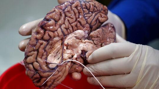 Lægerne har svært ved at stoppe en blødning i hjernen, hvis den opstår. Her ses en menneskehjerne.