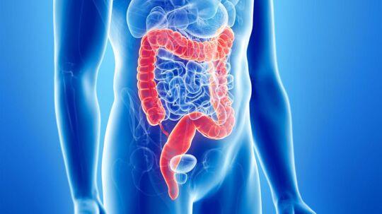 Hvis du vil styrke antallet af sunde bakterier i din tarm, er det især en god ide at spise yoghurt, A38, skyr, kefir, kimchi, miso og kraut.