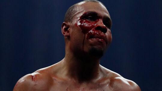 En øjenskade hæmmede Chris Eubank Jr. (foto) fra tredje runde, og briten var aldrig i nærheden af sejren mod George Groves. Scanpix/Andrew Couldridge