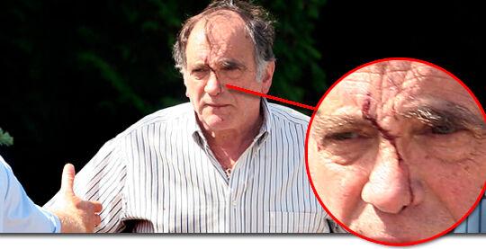 Den 70-årige Farum-politiker var i kamp med mindst en af de tre gerningsmænd, der blev smidt ned ad en kældertrappe.