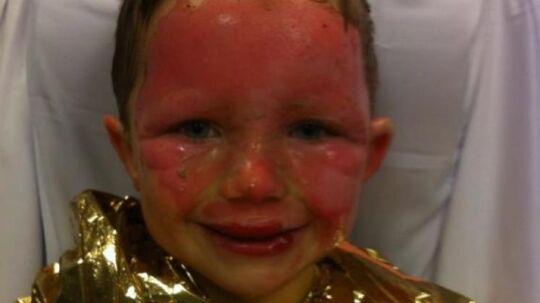 Magnus er blevet slemt forbrændt, efter en ansat i hans SFO hældte brændbar væske på et bål.