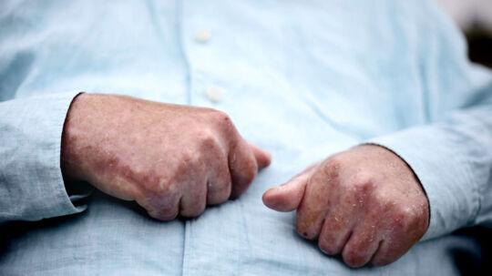 Herhjemme er Michael Madsen én blandt de mange ofre for Omniscan. I USA har medicinalgiganten GE Healthcare udbetalt enorme summer i erstatning til de invaliderede patienter.