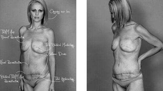 Beth Whaanga står frem med sine mange operationsar efter kampen mod kræft.