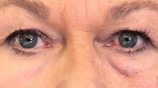 Forskere lover, at XPL både kan skjule rynker og poser under øjnene, og med dette billede fremlægger de deres resultater. Højre side af ansigtet er ubehandlet, mens venstre side er blevet påført XPL. Foto: Olivo Labs, LLC