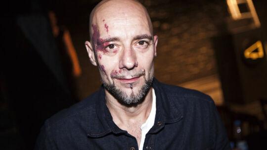 Jimmy Jørgensen er måske landets mest erfarne teaterkoncert-spiller. Men han blev fyret som hovednavn på Odeons teaterkoncert 'Mød mig i mørket', da han forlangte garanti for sin løn af bagmanden Morten Christensen.